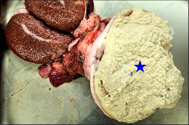 Abbildung 3: Schnittflächen des linken und rechten Hodens, einseitige hochgradige chronische eitrig-abszedierende Hodenentzündung (Stern)